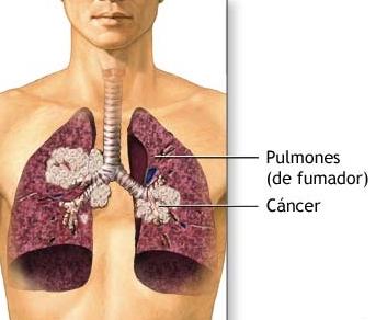 Peróxido de hidrógeno compuesto en el tabaco que produce el cáncer de pulmón