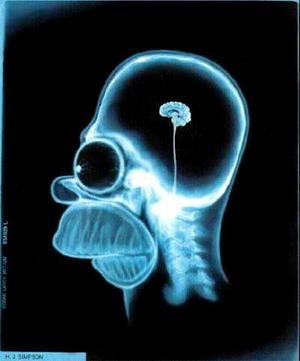 vivir sin cerebro