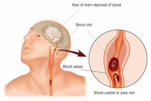 Reconocer un derrame cerebral y evitar daños graves