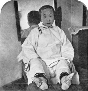 Deformidad por estética, reducción de pies de las chinas