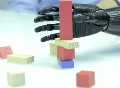 Una prótesis a la vanguardia de la tecnología